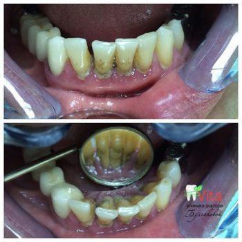 """Чистка зубов в """"Стоматологии доктора Булгаковой"""""""