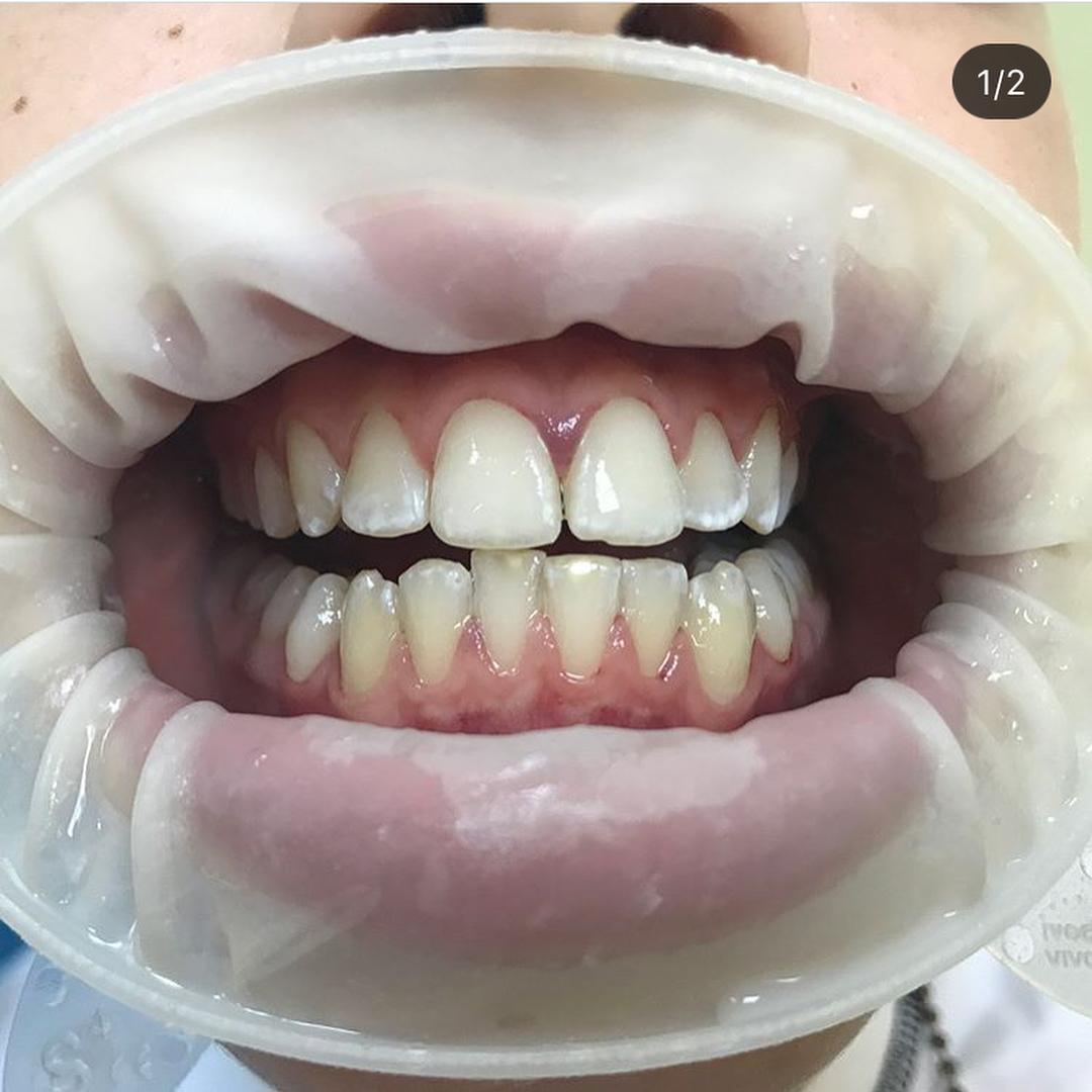 Почему стоит регулярно проводить ультразвуковую чистку зубов?