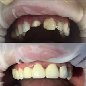 Протезирование зубов в Махачкале