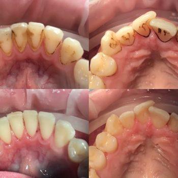 льтразвуковая чистка зубов