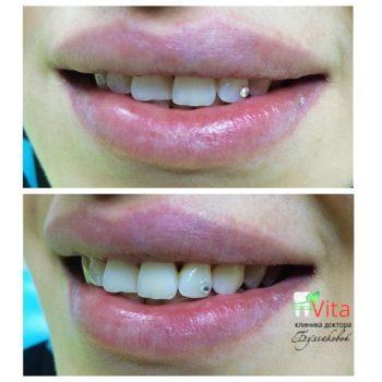Эстетическая стоматология украшение зубов стразами и скайсами