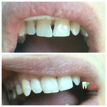 Стоматологическая терапия в Махачкале
