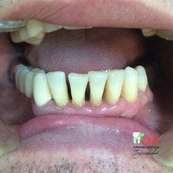 Отбеливание и профессиональная чистка зубов в Махачкале